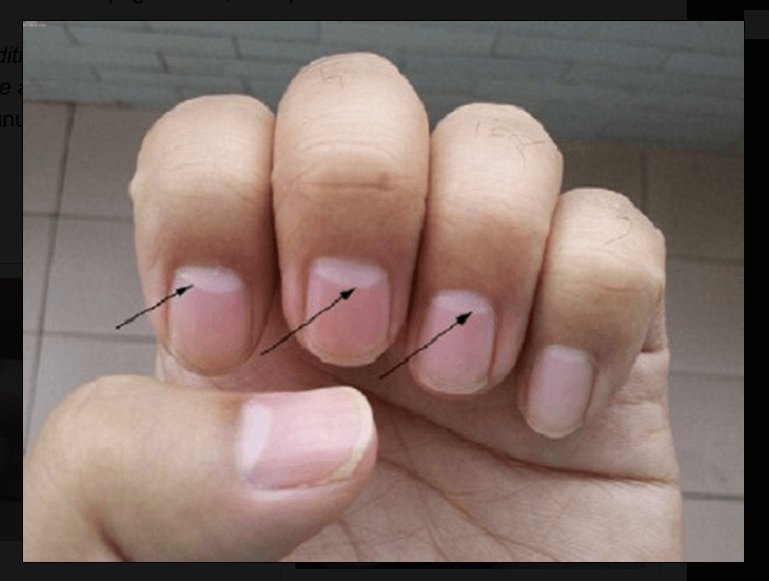 White Spot On Your Nails Can Tell Your Body Health !!!!!! – Alivetales