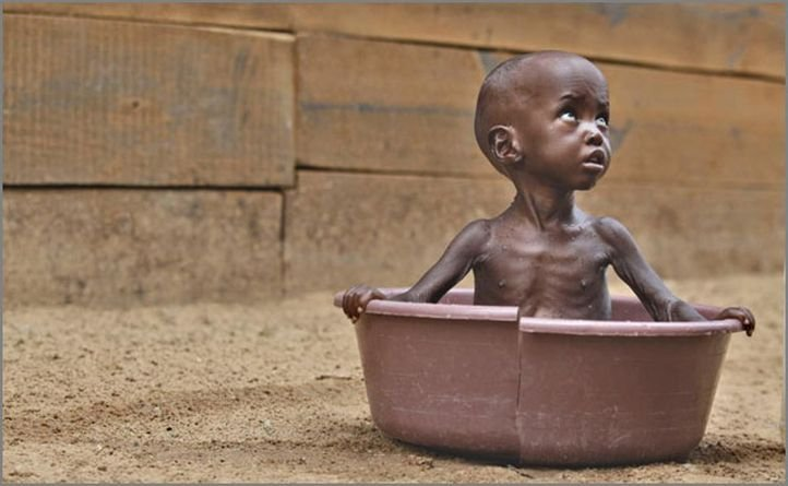These Countries Starving To Death Will Make You Think Twice - 3rd world countries list 2013