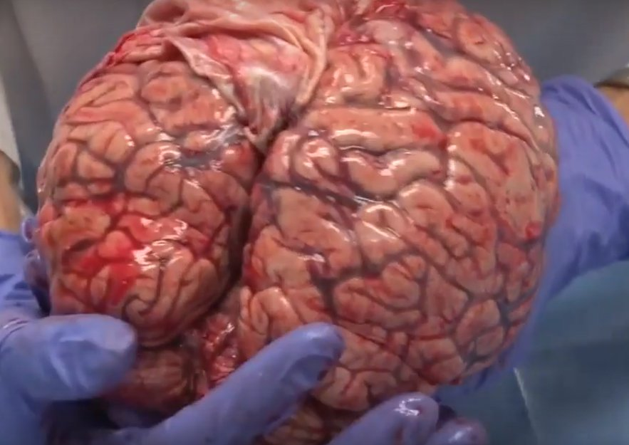 This Video Of A Freshly Removed Human Brain Will Leave You In Awe Of