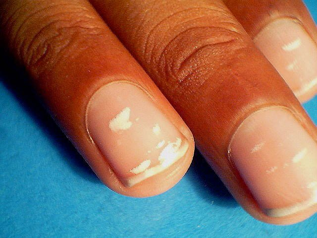 Those White Marks On Your Nails Don\'t Appear Because Of Calcium ...