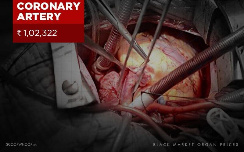 how to sell organs on the black market