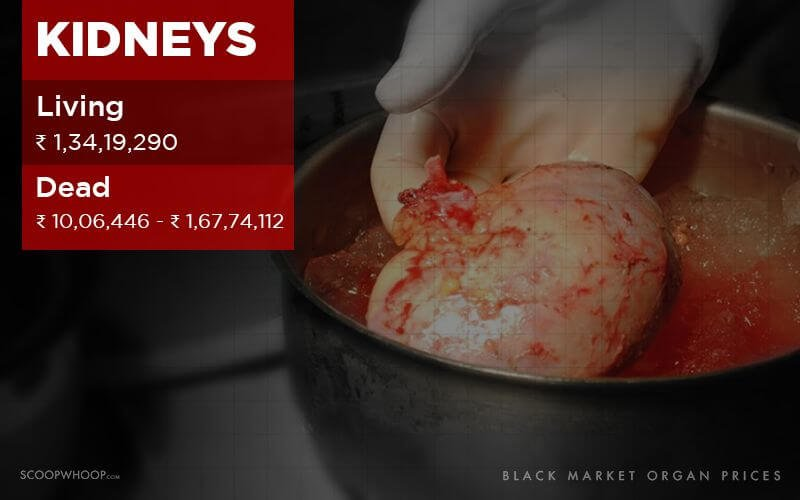 Here's How Much The Human Body Is Worth On The Black Market