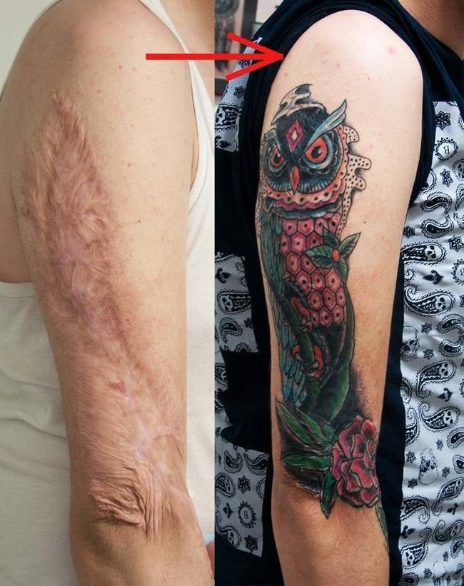 21 Times People Turned To Tattoos To Cover Up Their Scars It