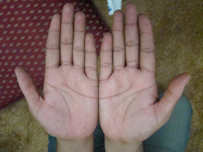 If You Have A Half Moon On Your Palms, This Is What It