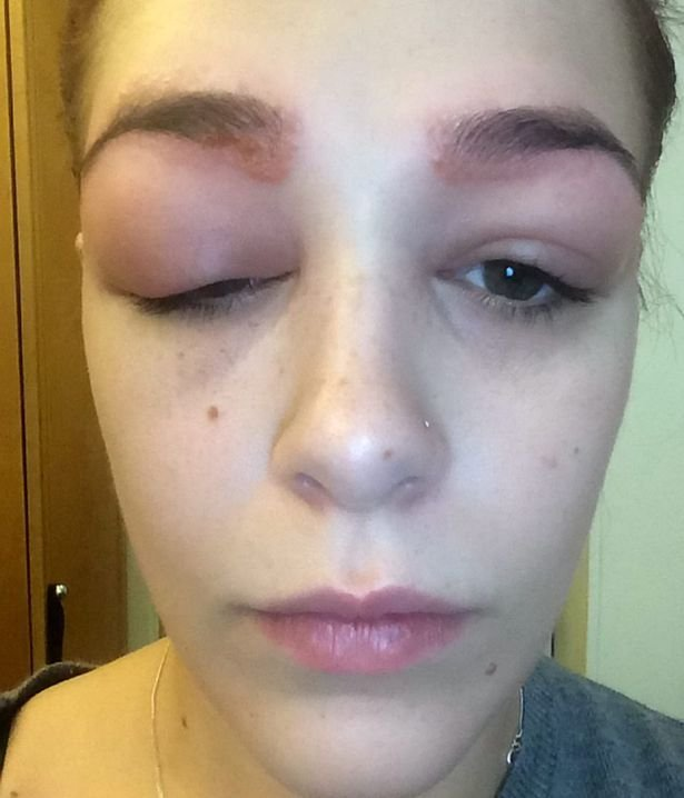 She Wanted Prettier Eyebrows. She Ended Up Doing This To ...
