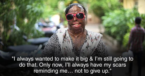This Acid Attack Survivor's Story Is About Finding Hope & Courage When All Seems Lost