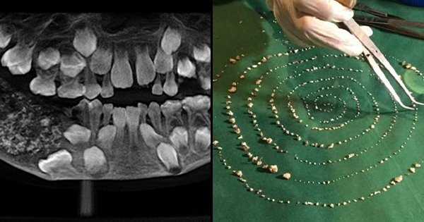 Chennai Surgeons Remove 526 Teeth From A Boy's Mouth. Yes, You Read That Number Right